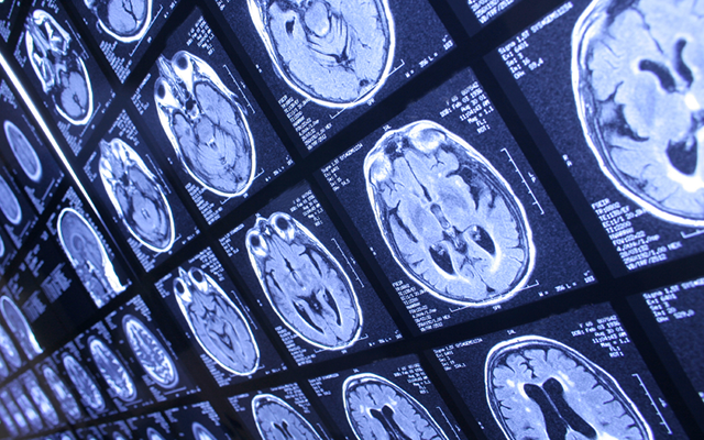 marihuana mózg zdrowie thc cbd kannabidiol kannabinol