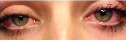 zjarane-oczy