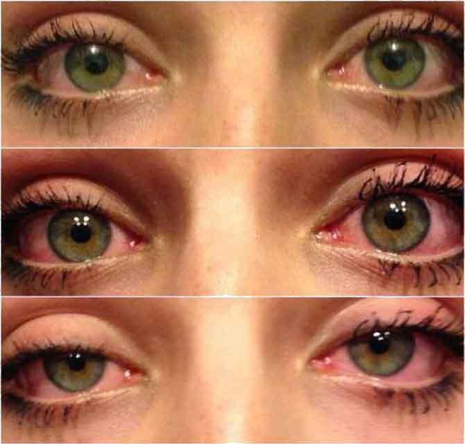 Tak wyglądają oczy po paleniu marihuany - ciężkie powieki i przekrwione oczy