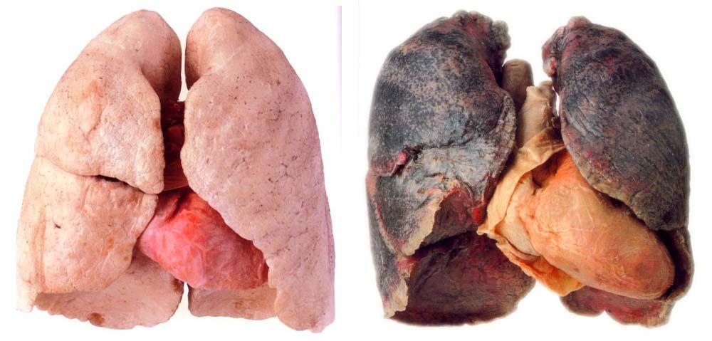 porównanie płuc nałogowego palacza tytoniu i osoby, która nie pali papierosów