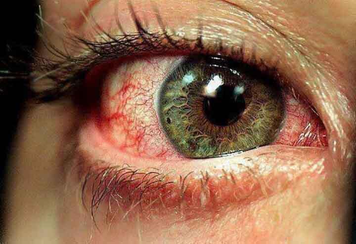 Przekrwione oko po paleniu marihuany