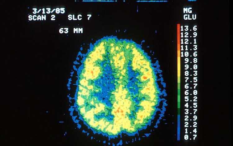 mozg pod wplywem marihuany