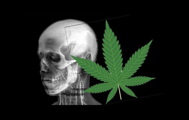 palenie marihuany związane ze zmianami w układzie nagrody w mózgu