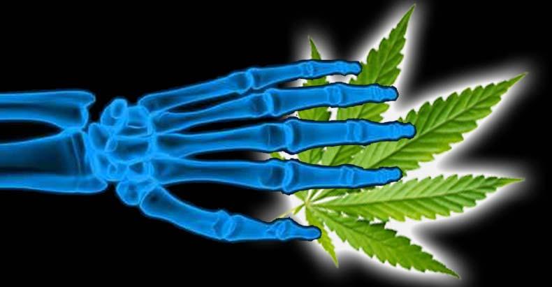 Badania pokazały, że użytkownicy marihuany mieli niższą gęstość kości niż osoby, które jej nie używają