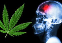 używanie marihuany a ryzyko udaru mózgu